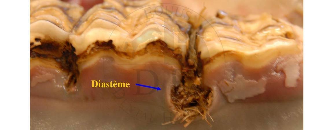 Diastème